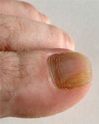 The discoloration on this guy's big toenail may indicate a fungal infection.