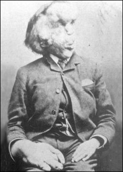 The last known picture of Joseph Merrick (circa 1890), who was thought to have Proteus syndrome.